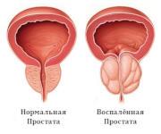 Апитерапия против простатита