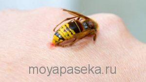 если пчела ужалила в ногу что делать